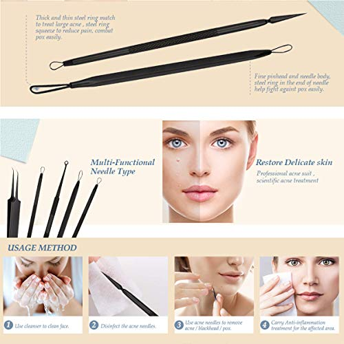 Alalan Blackhead Remover Comedone Extractor Acne Removal kit, Stainless Steel Professional Pimple Acne Blemish Removal…