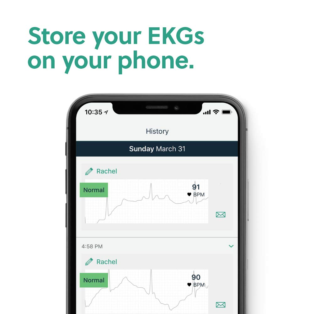 dda95743 AliveCor® KardiaMobile EKG Monitor | FDA-Cleared | Wireless Personal EKG |  Works with Smartphone | Detects AFib in 30 seconds: Amazon.ca: Health &  Personal ...