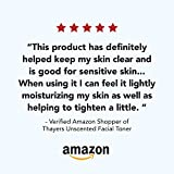 Thayers Alcohol-Free Unscented Witch Hazel Facial
