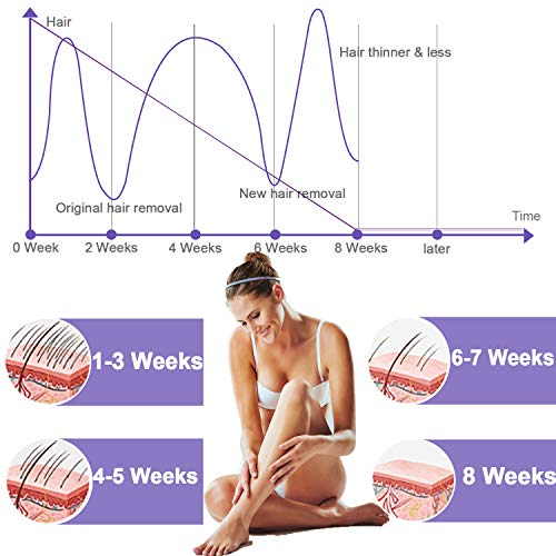 IPL Permanent Hair Removal, HALUM Professional Painless Laser Hair Removal Device Upgrade to 999,999 Flashes Facial Body Household Hair Removal Devices for Women and Men