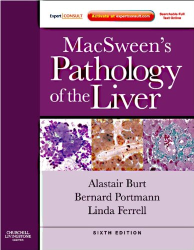 MacSween's Pathology of the Liver E-Book (Expert Consult Title: Online + Print)