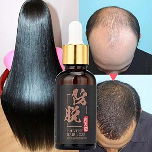 Fheaven (TM) Natural Hair Growth Essence liquid Fast Hair Growth Hair Loss Treatment for Hair Thinning and Loss
