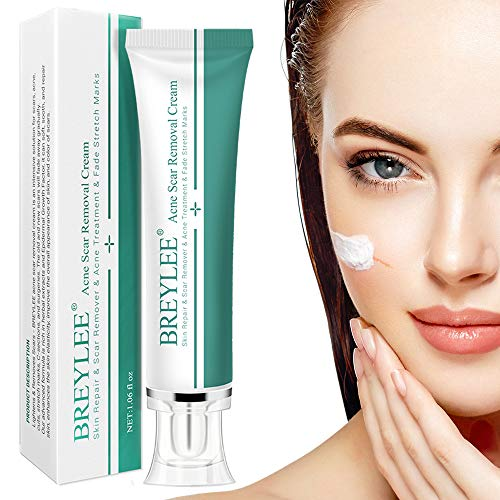 Natural Scar Removal Cream for New and Old Scars, Acne Treatment Cream Effective in Acne Spots, Stretch Marks, C-Section, Burn, Keloid and Surgical Scars-Gentle Herbal Extracts Formula(30ml)