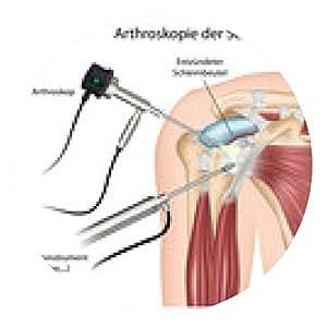 alfombrilla de ratón La artroscopia del hombro - ronda - 20cm