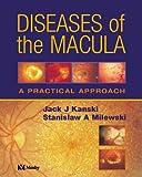 Diseases of the Macula