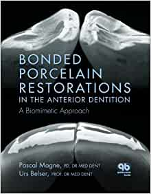 bonded porcelain restorations in the anterior dentition pdf
