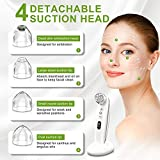 Blackhead Remover Pore Vacuum Cleaner 2020 Upgraded Design - Blackhead Extractor, Blackhead Vacuum USB Rechargeable Suction With 4 Replaceable Probes 6 Suction Power Level and Chargeable Base