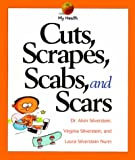Cuts, Scrapes, Scabs, and Scars, Alvin Silverstein and Virginia B. Silverstein, 053116411X