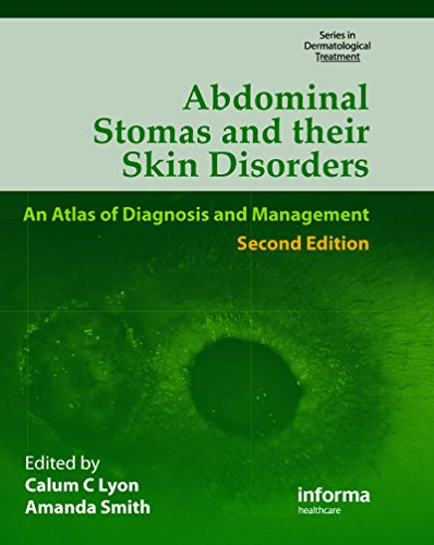 Abdominal Stomas and Their Skin Disorders,Second Edition (Series in Dermatological Treatment) Pdf