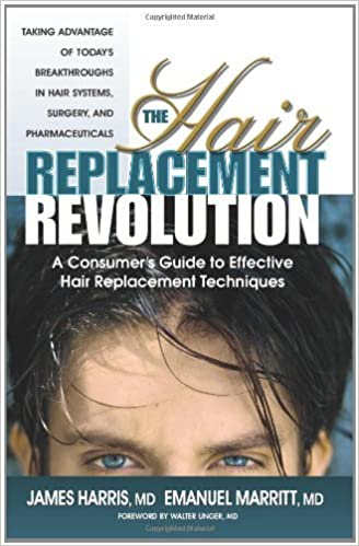 Book The Hair Replacement Revolution: A Consumer's Guide to Effective Hair Replacement Techniques by James Harris (2003-01-01)