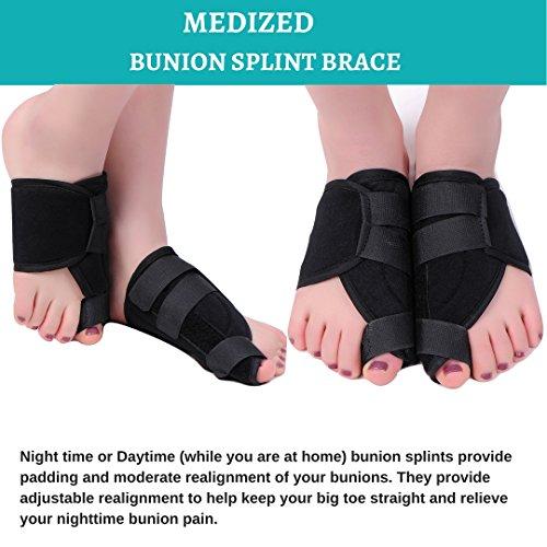 MEDIZED Quality Bunion Splint Pad Toe Hammer Separators Hallux Valgus Protector Bunion Corrector bunion Pads Toe Spacer Bunion Splint Straightener Bunion Bootie by MEDIZED (Image #2)