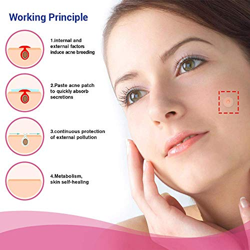 OHeal Acne Pimple Master Patch 108 dots - Absorbing Hydrocolloid Blemish Spot Skin Treatment (108 Patches, 3Pack)