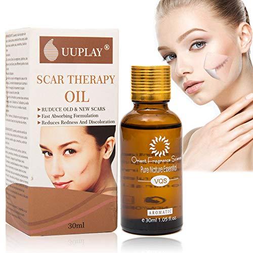 Narben Behandlung,Narben Serum,Scar oil, Reduziert Dehnungsstreifen und Narben.Reduzieren alten und neuen Narben und Reparieren Haut,Beste Behandlung für Akne,Narben,Flecken,feine Linien und Falten