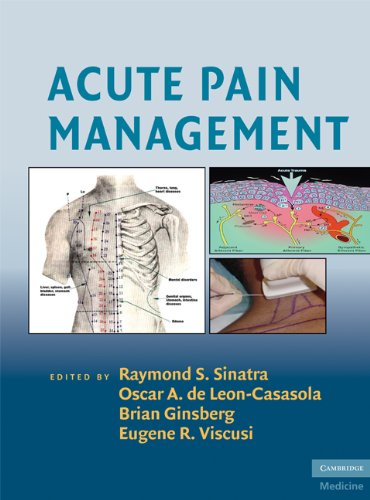 Acute Pain Management (Cambridge Medicine (Hardcover))