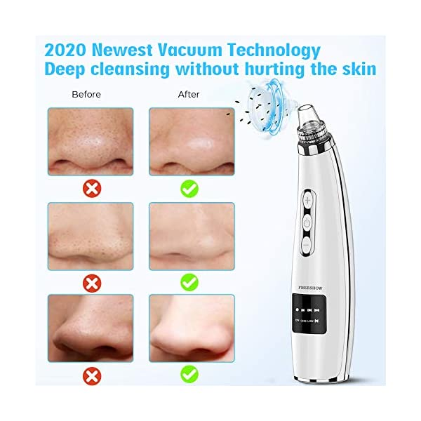 2021 Newest Blackhead Remover Pore Vacuum Electric Pore Cleaner, 5 Suction Power & 5 Probes, USB Rechargeable LED…