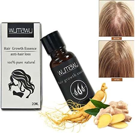 wumawu Hair Growth Essence,Hair Growth Liquid Help Hair Growing Fast Longer - Strengthens Hair Roots - Hair Loss & Hair Thinning Treatment