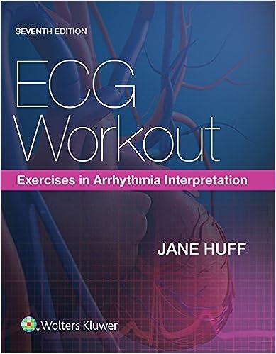 Amazon Com Ecg Workout Exercises In Arrhythmia Interpretation