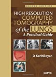 High Resolution Computed Tomography of the Lungs: A Practical Guide, D. Karthikeyan, 935090408X