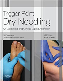 Trigger point dry needling e book an evidence and clinical based trigger point dry needling e book an evidence and clinical based approach por fandeluxe Images