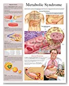 Metabolic Syndrome e-chart: Full illustrated