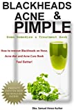 Blackhead Home Remedies Blackheads, Acne & Pimple: Blackheads, Acne, Pimple home remedies & Treatment Book