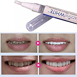 Elevin(TM) White Tooth Cleaning Bleaching Dental Professional Kit Teeth Whitening Gel Pen