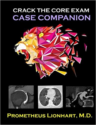 Crack The CORE Exam Case Companion Medicine - 20 funniest reviews ever written amazon 6 cracked