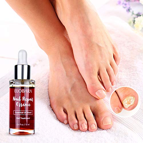 Nail Fungus Repair, Maximum Strength Fungal Toenail Solution, Nail Repair, Restores Healthy Appearance of Discolored & Damaged Nails