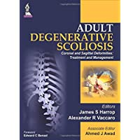 Adult Degenerative Scoliosis Coronal And Sagittal Deformities: Treatment And Management