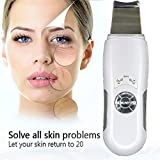 Hot Ul Deeply Skin Facial Cleaner Pore Cleansing Device Blackhead Removal Peeling Shovel Machine Face Exfoliator Russian