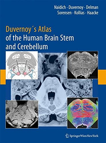 Duvernoy's Atlas of the Human Brain Stem and Cerebellum: High-Field MRI, Surface Anatomy, Internal Structure, Vasculariz