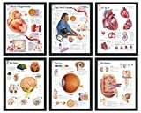 """Set of 6 Framed Medical Posters Effects of Hypertension; High Blood Pressure; The Eye; The Brain; The Heart; The Kidney 22""""x28"""" Wall Diagrams Educational Informational Doctors Office Charts"""