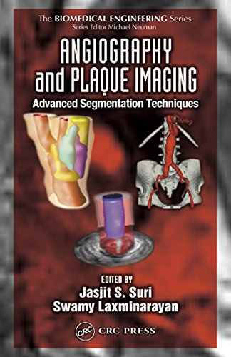 Angiography and Plaque Imaging: Advanced Segmentation Techniques (Biomedical Engineering)