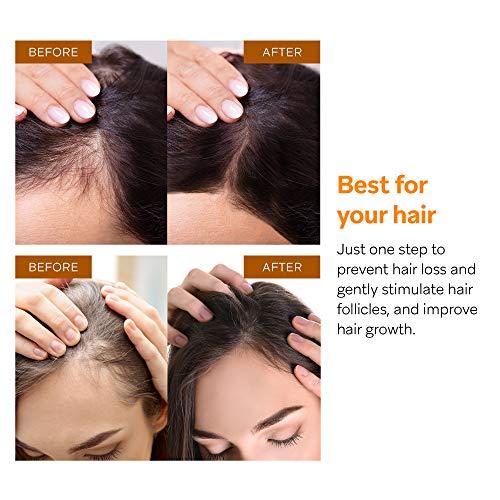 AZALLY Hair Growth Serum, Ginger Hair Growth Oil , Best Hair Loss Prevention Treatment(60ml)