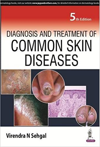 Buy Diagnosis And Treatment Of Common Skin Diseases Book