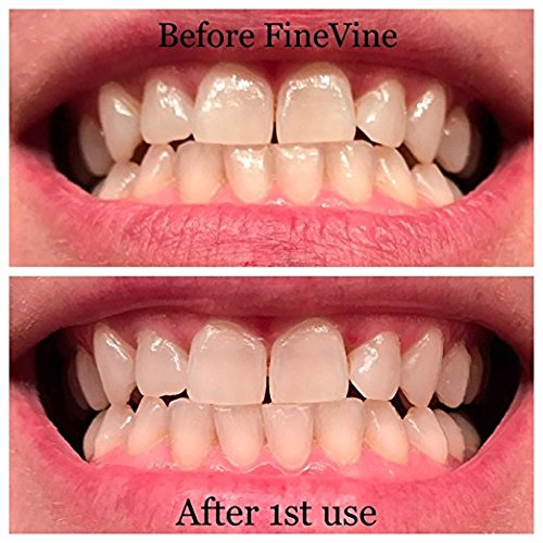 Charcoal Teeth Whitening Toothpaste - Made in USA - WHITENS TEETH NATURALLY and REMOVES BAD BREATH - Best Natural Vegan Organic Toothpaste - (Spearmint Flavor) by FineVine (Image #3)