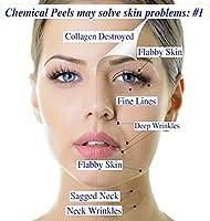 I Max 30% Trichloroacetic Acid Serum-Deep Chemical Peel. by MaxLife USA, Inc