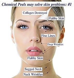 I Max 15% Trichloroacetic Acid Serum-Deep Chemical Peel. from MaxLife USA, Inc