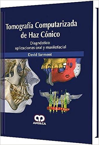 TOMOGRAFIA COMPUTARIZADA DE HAZ CONICO. DIAGNOSTICO APLICACIONES ORAL Y MAXILOFACIAL: Amazon.es: D. Sarment: Libros