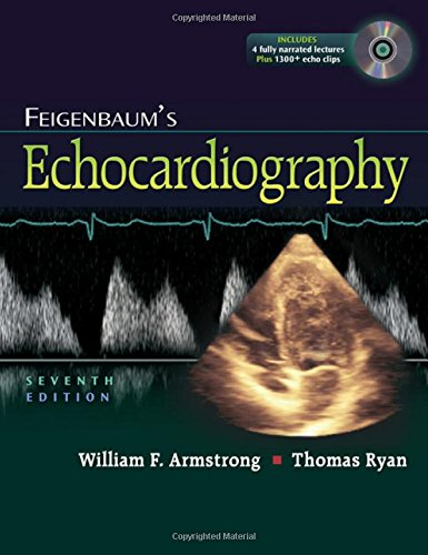 Pdfread feigenbaum s echocardiography bestseller book by william f pdfread feigenbaum s echocardiography bestseller book by william f armstrong md x5o85ii7j fandeluxe Choice Image