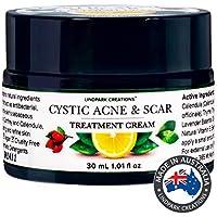 Cystic Acne & Scar Treatment Cream X Strong Tea Tree Oil, Nigella, Green Tea, Rosehip, Natural Vitamin E and Aloe Vera…