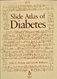 Slide Atlas of Diabetes : A Selection of Images from the Textbook of Diabetes, Pickup, John C. and Williams, Gareth, 0632050144