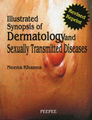 Neena Khanna Dermatology Pdf