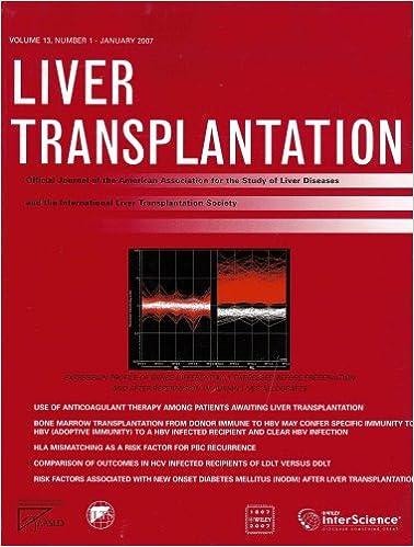 Картинки по запросу journal Liver Transplantation