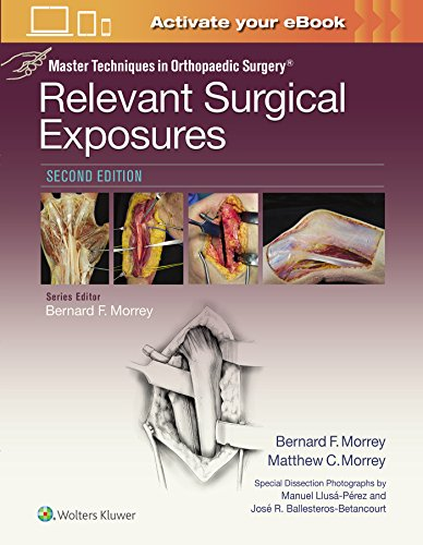 Master Techniques in Orthopaedic Surgery: Relevant Surgical Exposures - http://medicalbooks.filipinodoctors.org