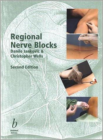 Regional Nerve Blocks: 9780632055579: Medicine & Health ...