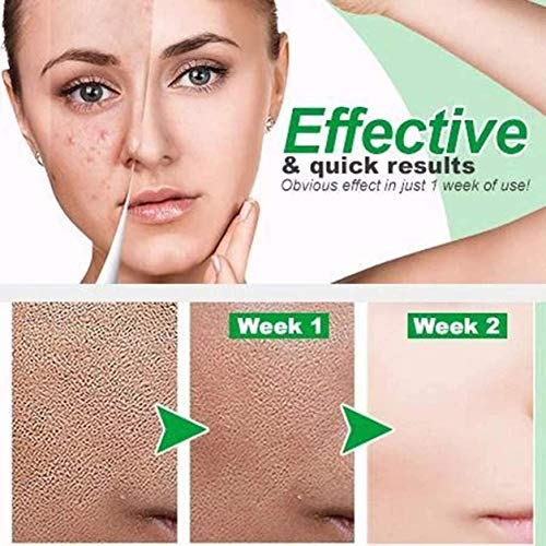 Zero Pore Instant Perfection Serum, Facial Care Repair Liquid for Reduce Pores & Remove Blackheads, Anti-aging Moisturizing Facial Serum - For All Skin Types (1Pack)