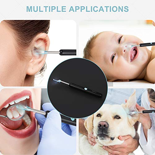Ear Wax Removal Tool, Earwax Remover Endoscope, 1080P FHD Wireless Ear Otoscope with 6 LED Lights, Ear Cleaner with Camera for iPhone, iPad & Android Smart Phones (Black)