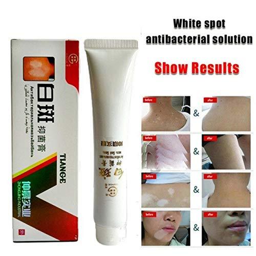 Buy Shoppy Shop Chinese Medical White Spot Disease Cream Pigment Melanin Promoting Liniment Skin Vitiligo Leukoplakia Disease Treatment 30g 558 Online At Low Prices In India Amazon In