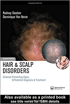 Hair and Scalp Disorders: Common Presenting Signs, Differential Diagnosis: Common Presenting Signs, Differential Diagnosis and Treatment